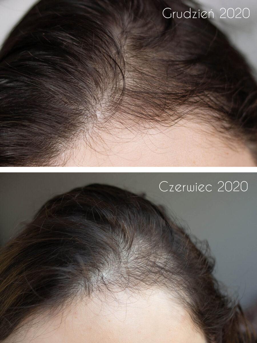 serum do skóry głowy nowa kosmetyka opinie